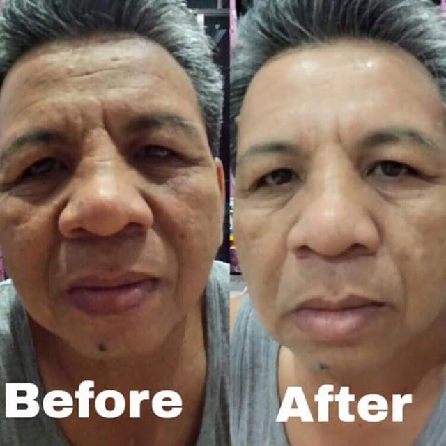 lasoul v lifting serum testi
