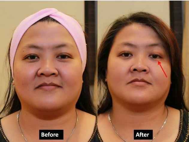 v lifting serum test1
