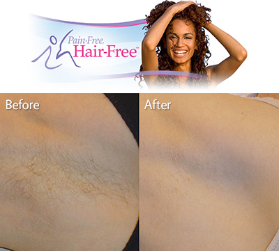 Zengie Maison De Beaute - Underarm Hair Removal Treatment photo